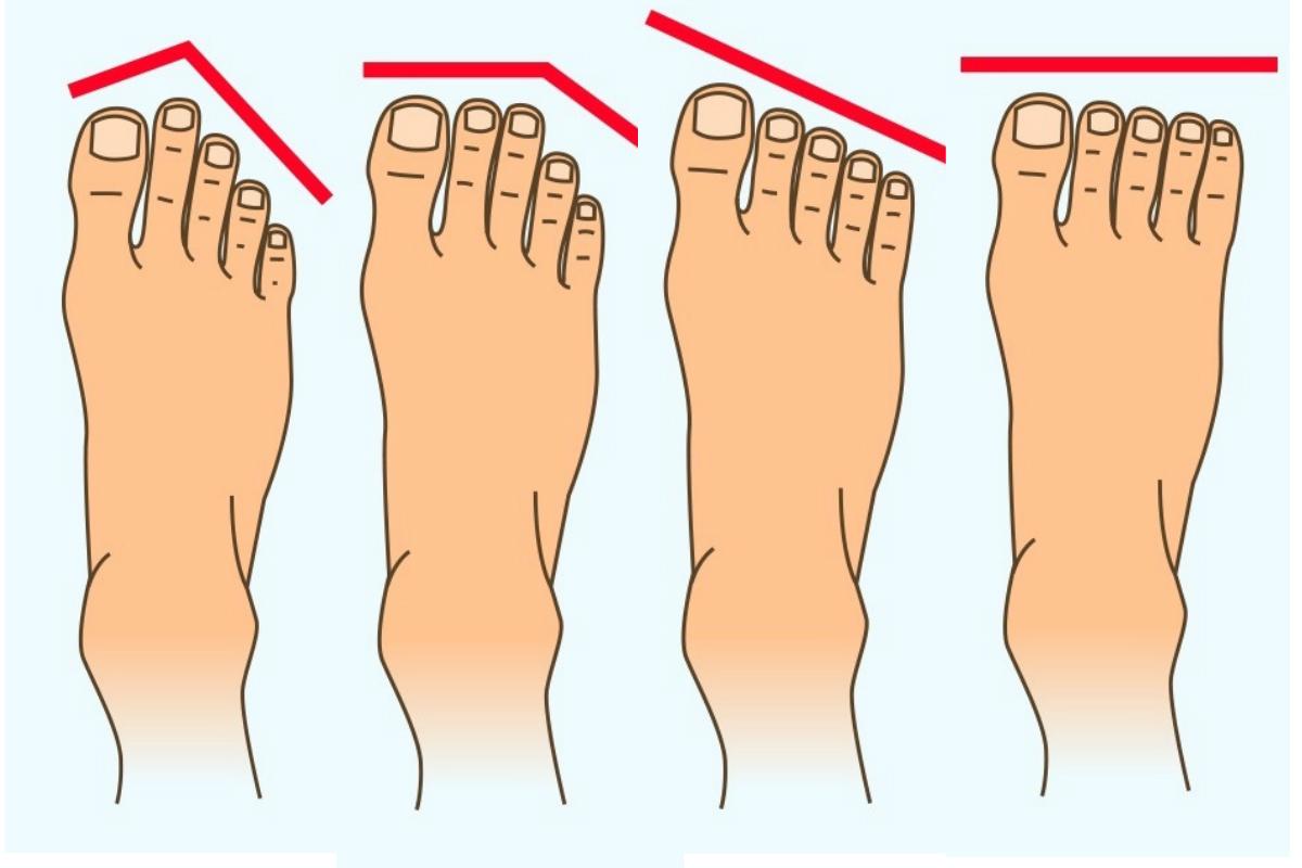 Çocuklarda ayaklı ayaklar ve nasıl tedavi edilir